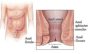 Homeopathic Treatment of Anal Fistula Without Operation in Pakistan image