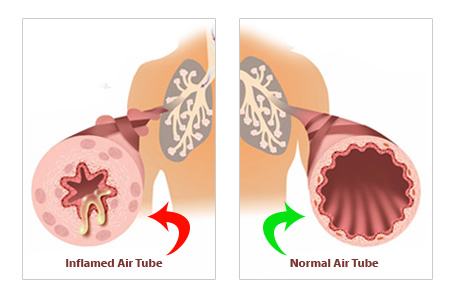 What is Asthma image
