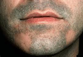 Alopecia-areata effecting beard area