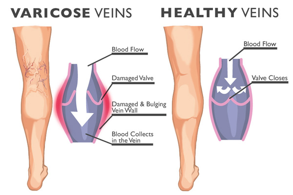 healthy and varicose veins image
