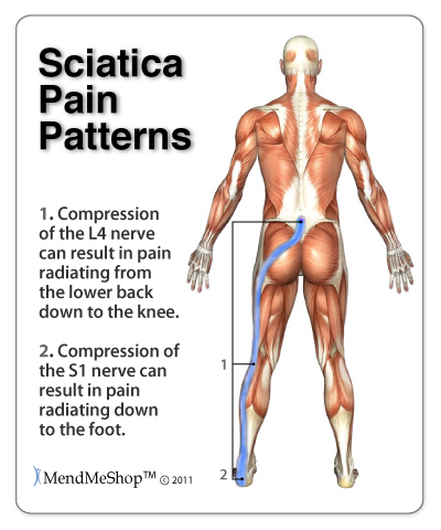 patterns of sciatic pain image