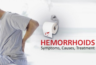 Hemorrhoids symptoms causes and homeopathic treatment