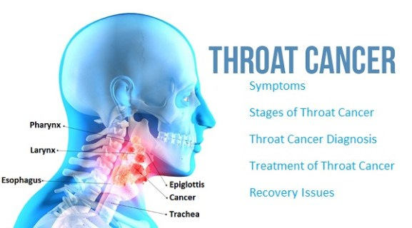 Throat Cancer Causes Symptoms and Homeopathic Treatment