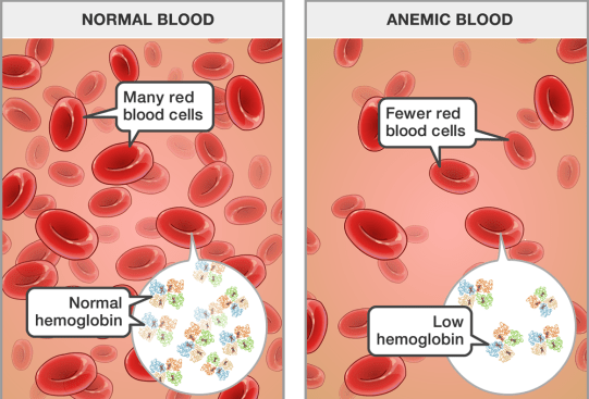 Dr Sabeel Anemia Causes Diagnosis and Homeopathic treatment