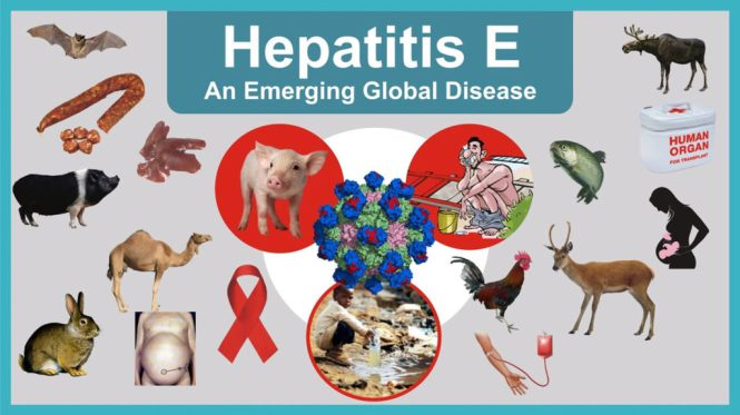 Hepatitis E-Symptoms-Causes-Treatment Homeopathic Treatment
