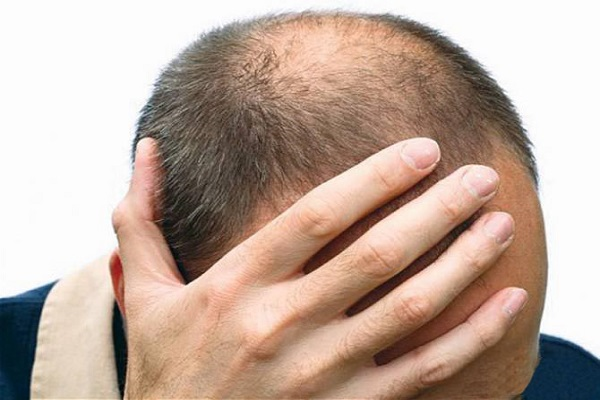 The problem of baldness is troubling, then these home remedies