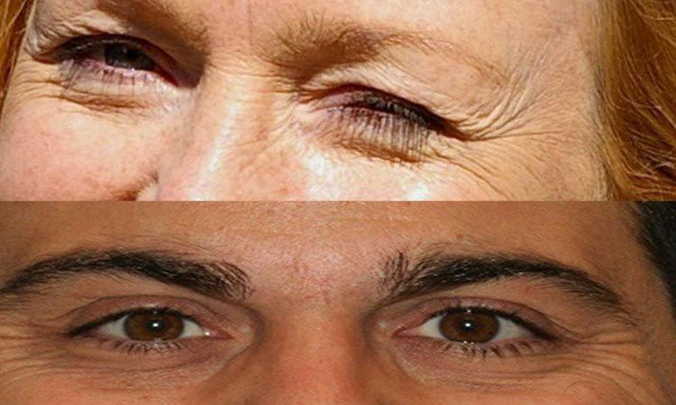 People with wrinkles around the eyes are more honest than a report !!