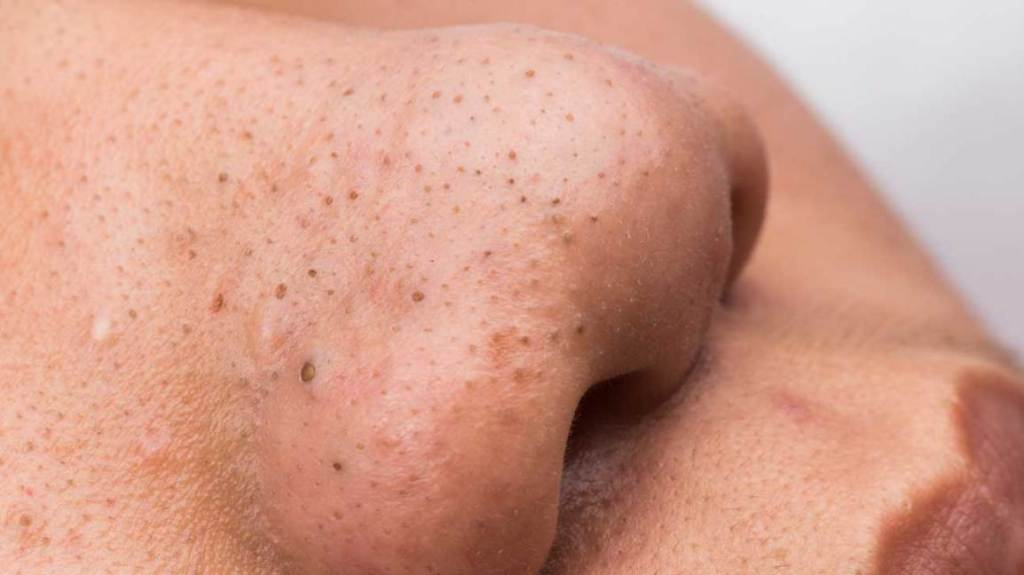 Blackheads disappear in just minutes - adopt these methods