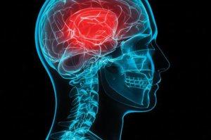 Concussion research