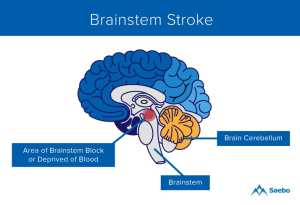 What is a Brainstem Stroke? | Saebo
