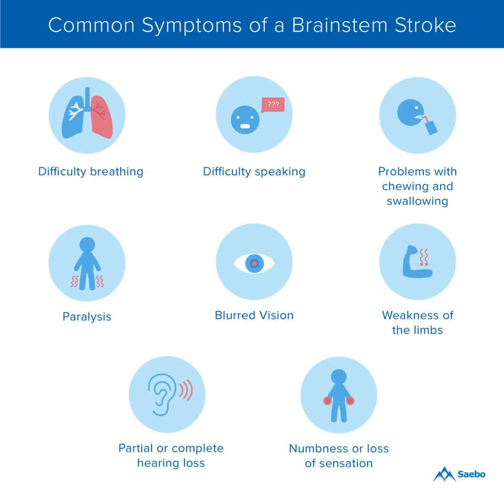 Pure Motor Stroke Symptoms