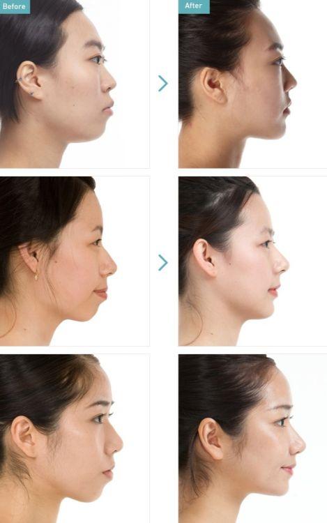 03a75e0bc30168de75d0bd59e0c69e6d--korean-plastic-surgery-science-fair