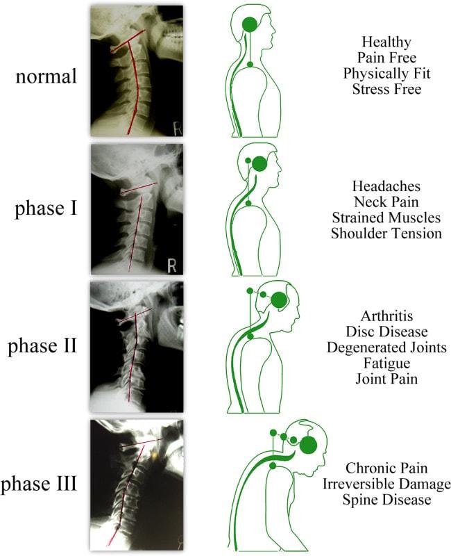 chiropractor in south lake tahoe south lake tahoe chiropractic dr joshua welch