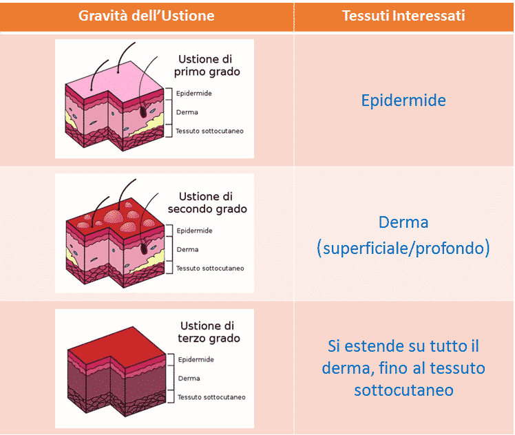 Tabella gravità ustioni e tessuti interessati