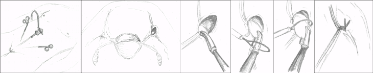 ped inguinal hernia 1