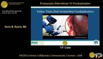 Alternatives ot fundoplication: Linx from the SAGES Video Library