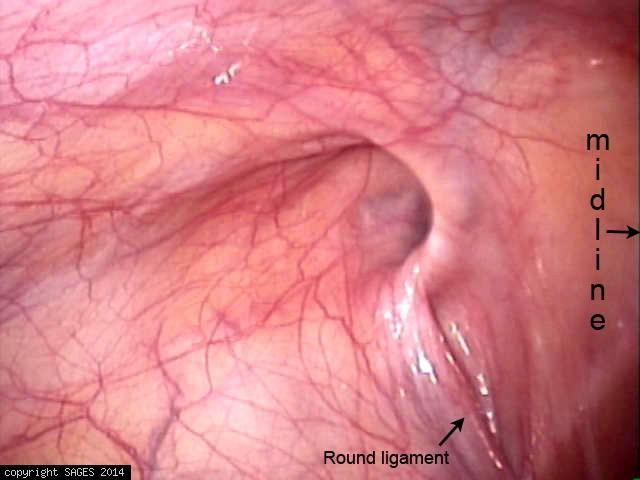 indirect hernia in female