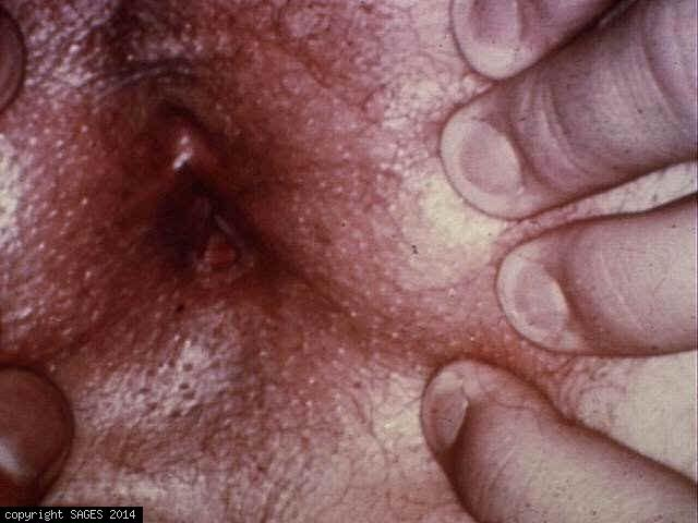 chronic anal fissure