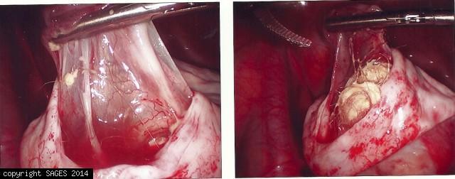 Ovarian drmoid