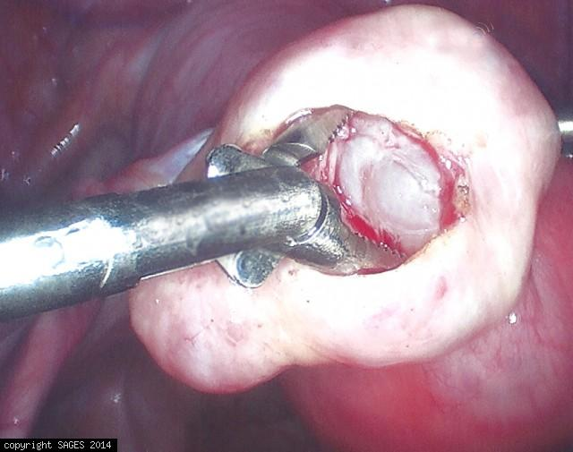 extraction of ovarian cyst