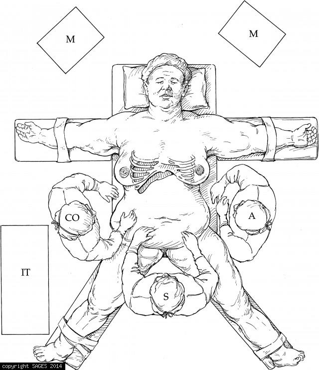 Patient position and room setup for gastric bypass