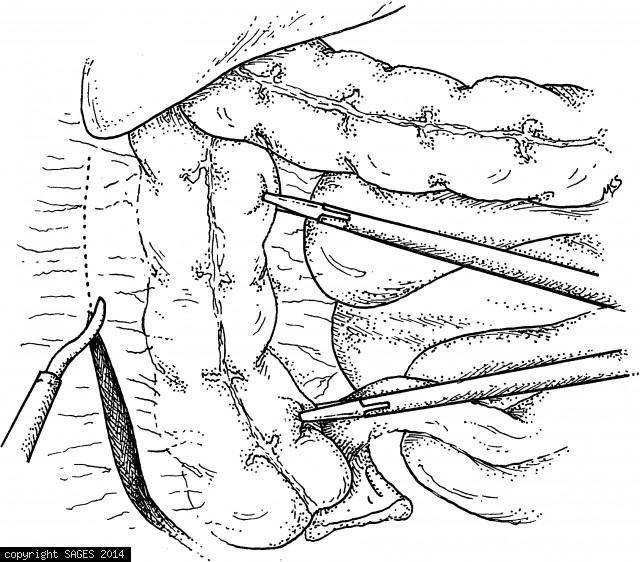 Mobilization of right colon.