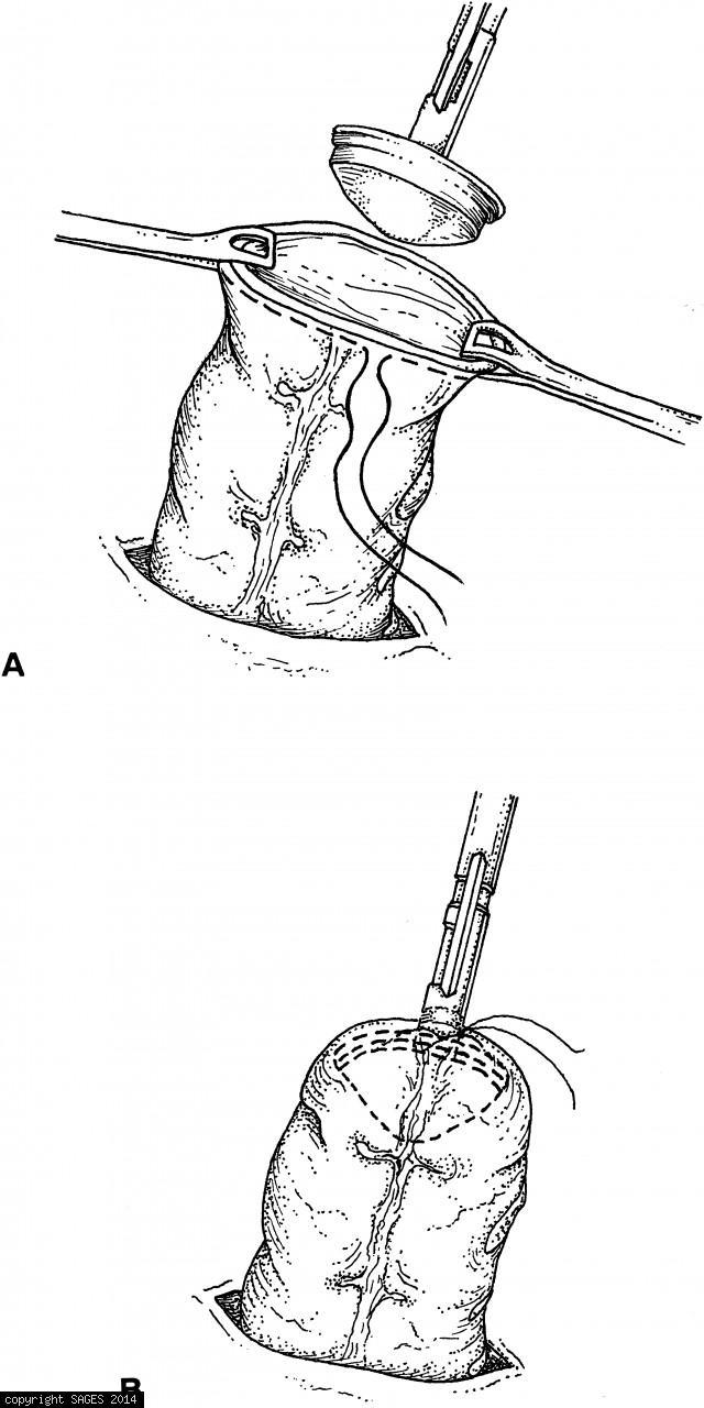 The anvil of the circular stapler