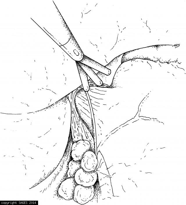 Exposure of the celiac nodes