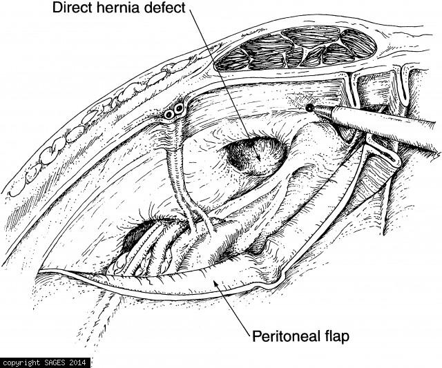 Mobilizing the peritoneal flap