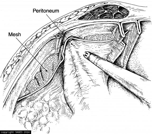 Closing peritoneal flap over the mesh with staples