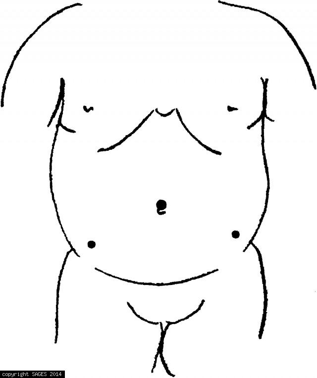 Trocar site placement for undescended testicle