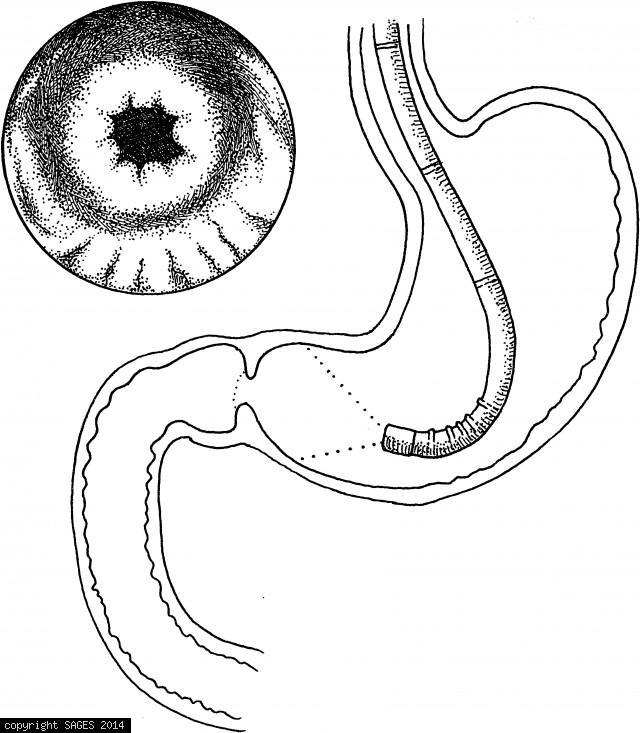 The Pylorus