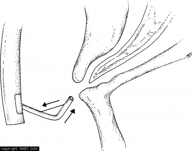 Bile duct cannulation