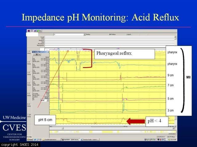 impedance pH reflux episode