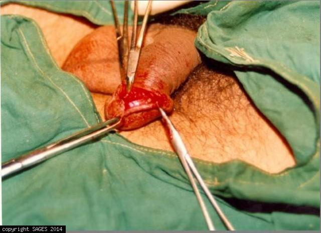 Penile Worm