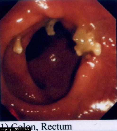 Transendoscopic Microsurgery (TEM)