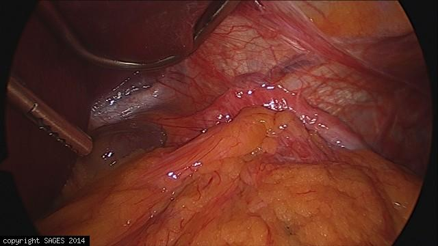 Paraesophageal hernia before reduction