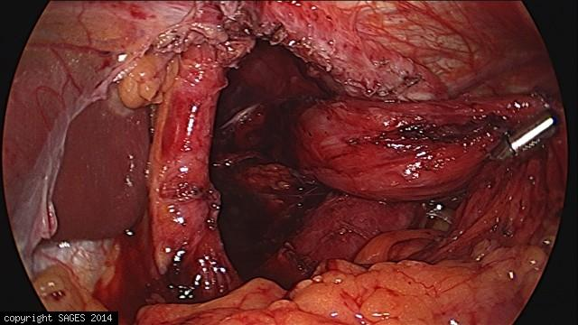 Paraesophageal Hernia – dissected