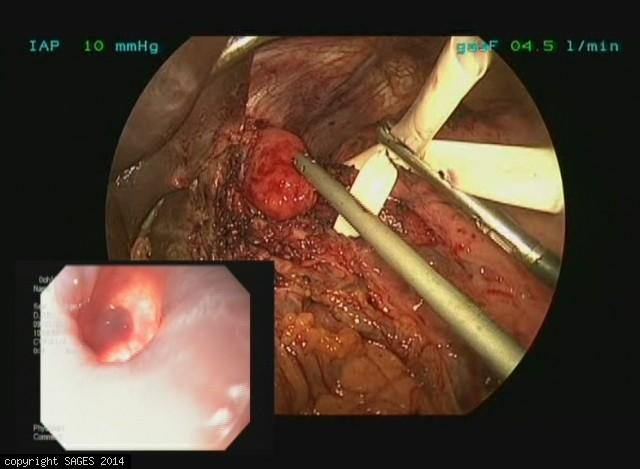 Laparoscopic Revision of Esophagomyotomy