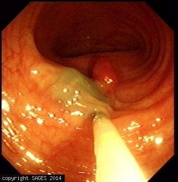 Colonoscopic Polypectomy