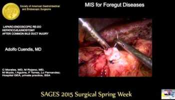 Laparoscopic Resection of the Extra Hepatic Bile Duct and