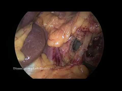 Laparoscopic Total Gastrectomy For Menetrier S Disease From The