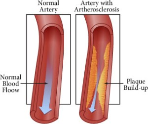 diagram-CIMT-artherosclerosis