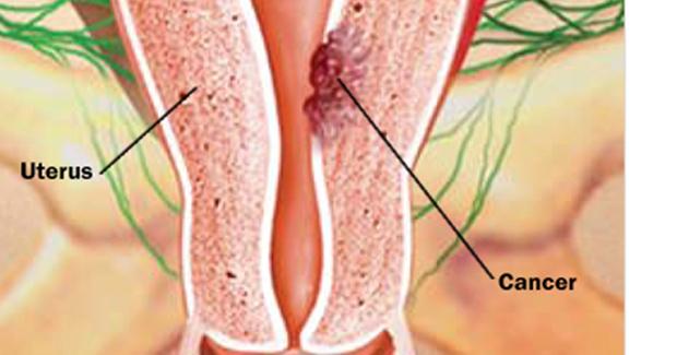 rahim kanseri belirtileri nelerdir