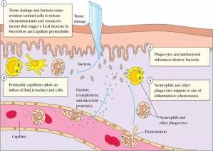 Cara Paling Sederhana Mengurangi Inflamasi