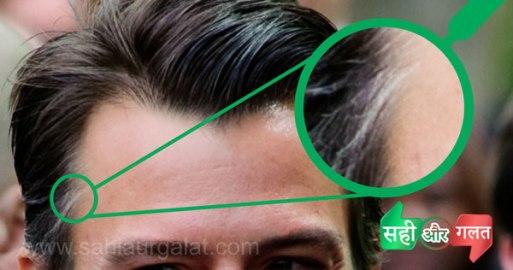 सफ़ेद बाल के ईलाज का फोटो