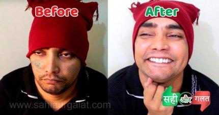 चेहरे के दाग-धब्बे खत्म होने से पहले और बाद की फ़ोटो