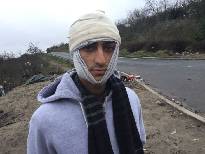 A young man with a head wound who lives in the Calais Refugee Camp