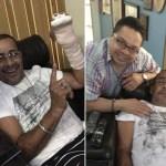 Luisito Carrión se recupera del accidente donde casi pierde dos dedos