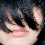 Vitiligo: sus Causas y Remedios Naturales